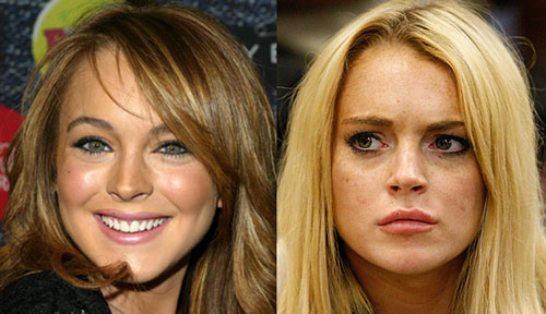 lindsay-lohan-before-after