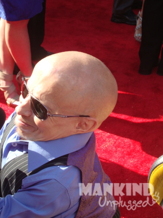 Verne Troyer ESPN ESPY Awards
